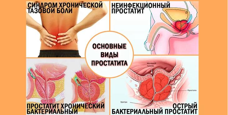 разновидности и классификация простатита